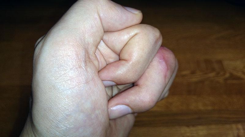 現在の左手
